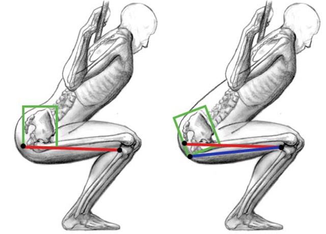 Til høyre ser du hvordan lumbar flekterer.