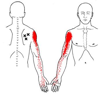 muskler i underarmen