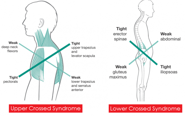 upper-and-lower-crossed-syndrome1