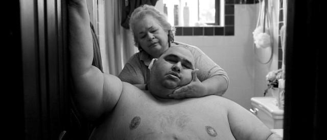 Sterke bilder: overvektens påkjenninger