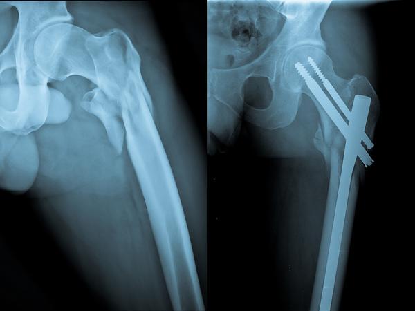 """Dette er ikke et uvanlig syn hos mennesker med hoftebrudd. Postoperative anatomiske """"avvik"""" der pasienten ikke har plager i det hele tatt."""
